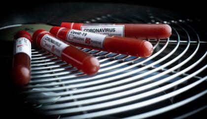 Coronavirus-blutproben-expagroder